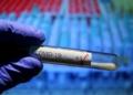 462 са новозаразените с COVID-19 или 12,63% от изследваните, 459 са излекуваните